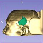 3D Slicer血肿分层等高线投影辅助脑出血内镜清除术