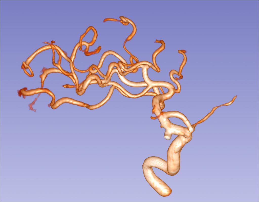 核磁共振血管成像也可以这么漂亮!